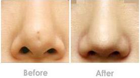 低鼻尖整形方法都有哪些