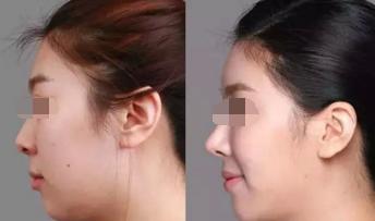 韩式隆鼻尖有哪些优势呢