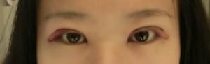 双眼皮整形案例 手术疼吗