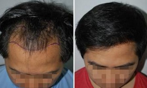 头发移植适应症有哪些