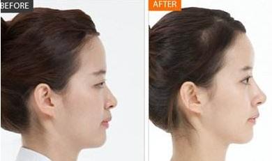 假体隆鼻手术的恢复情况怎么样