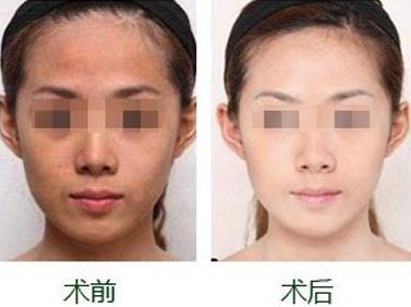 光子嫩肤治疗后能够维持多长时间