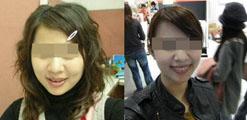 瘦脸针案例:我要打传说中的瘦脸针