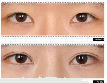 开眼角适合哪些人 让眼睛如何变长
