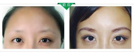 眉毛种植效果可靠吗