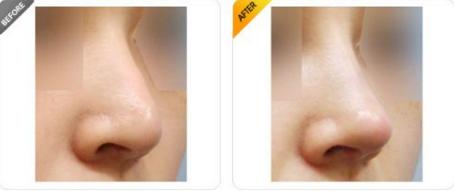 鼻尖下垂怎么办 鼻尖下垂矫正手术风险大吗