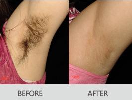 激光脱毛会影响肌肤排汗吗
