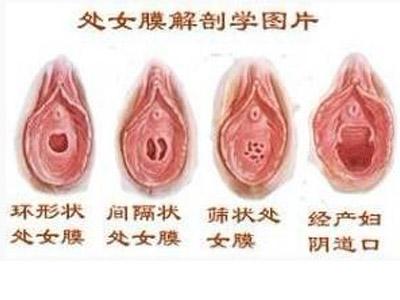 处女膜修复整形有哪些优点