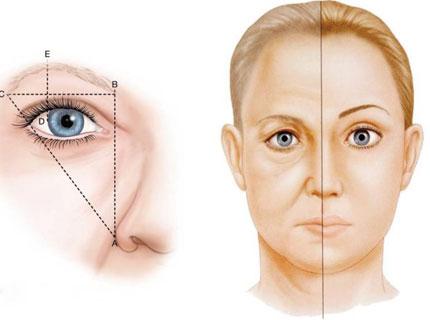 提眉除皱手术怎么做 让眼部神采飞扬