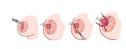 乳头内陷能治疗吗 会不会影响哺乳