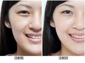 注射除皱可以保持多久的效果
