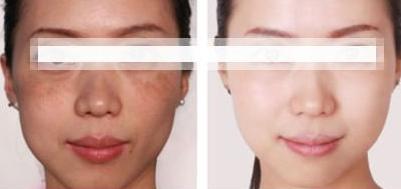 激光祛斑是否会造成皮肤疤痕