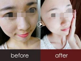 做彩光嫩肤术对肌肤有伤害吗
