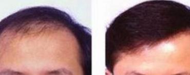 """头发种植术 解决""""头顶大事"""""""