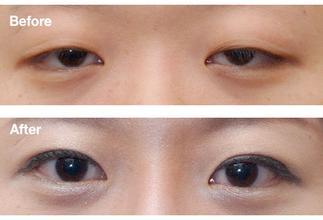 眼睑下垂矫正手术案