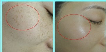 彩光嫩肤祛斑案例