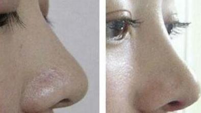 玻尿酸隆鼻案例:皮肤状态都很好