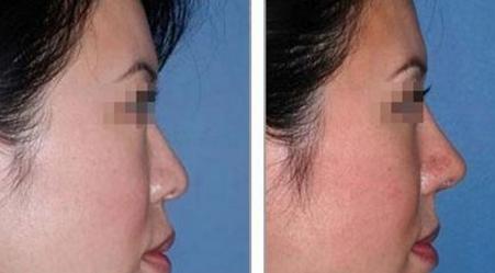 玻尿酸隆鼻案例:逼真还一点也不疼