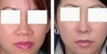 鼻翼缩小案例:术后效果很好
