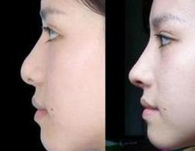 玻尿酸隆鼻案例:术后鼻子很好看