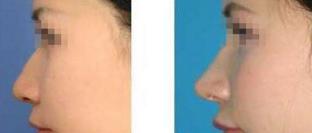 假体隆鼻失败修复案例:恢复美丽自信
