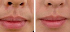 激光去唇毛案例:唇部毛发淡若不见