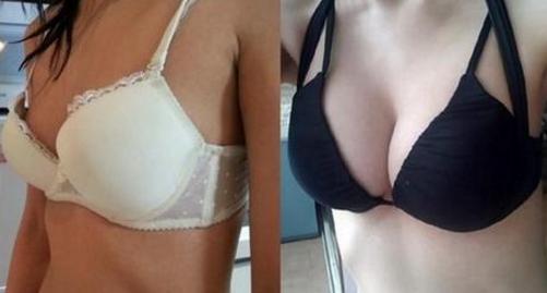 假体隆胸手术案例:脱掉A罩杯