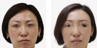 祛斑案例:脸上的斑点不见了