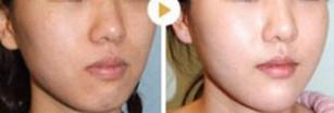 彩光嫩肤案例:皮肤变光滑