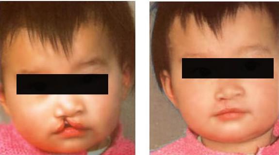 唇腭裂修复的原理 找回孩子自信