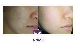 彩光嫩肤治疗毛孔粗大有哪些优势