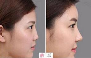 注射隆鼻手术的安全性高吗