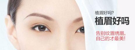 眉毛种植适合人群有哪些