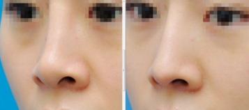 鼻头缩小后多久能完全恢复