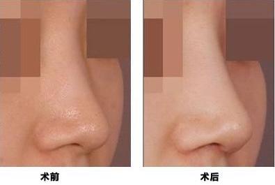 玻尿酸隆鼻的几个注意点