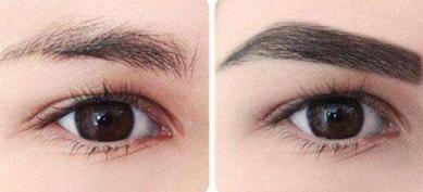 女性做眉毛种植效果好不好