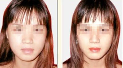 厚唇改薄手术切口在哪 术后怎么护理