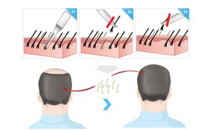 头发种植 告别稀发