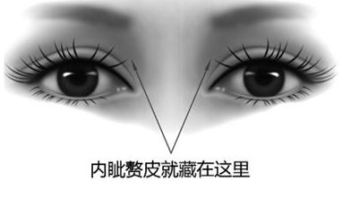 开眼角整形疼吗 做大眼气质女神