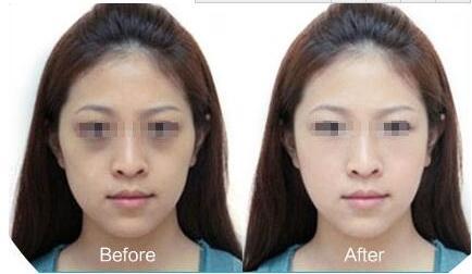 激光祛黑眼圈的效果 术后怎么护理好