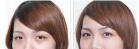 激光去除黑眼圈的过程 多久做一次