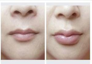 玻尿酸丰唇案例 注射过程