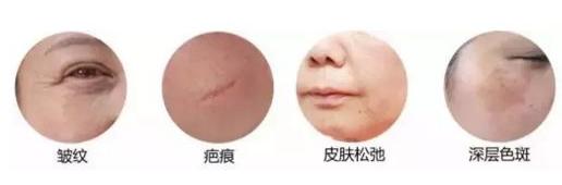 彩光嫩肤对皮肤有危害吗