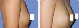 乳房再造的过程是怎样的呢