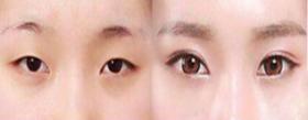 常见的双眼皮手术方法有哪几种