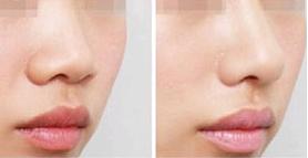 鼻小柱延长术后要注意什么