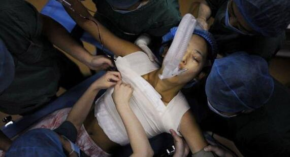 南京克拉美整形医院宁波女子隆胸后严重下垂超难看 整容变毁容!
