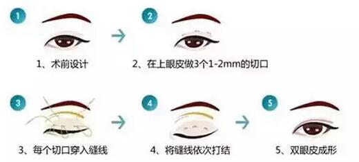做韩式双眼皮整形的过程 睫毛更加卷翘