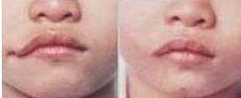口角成形术后效果自然吗 美唇是性感的诱惑