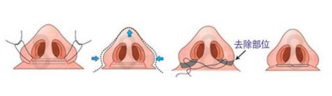 鼻翼肥大怎么变小